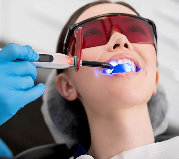 Huntsville Professional Teeth Whitening